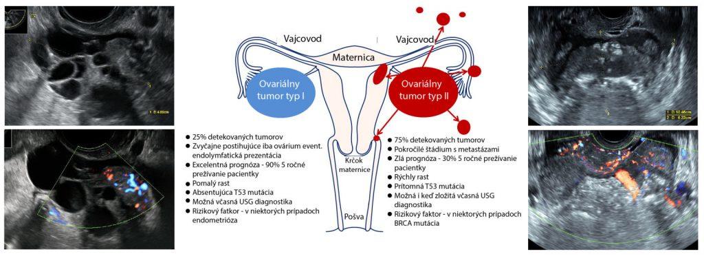 rakovina vajecnika
