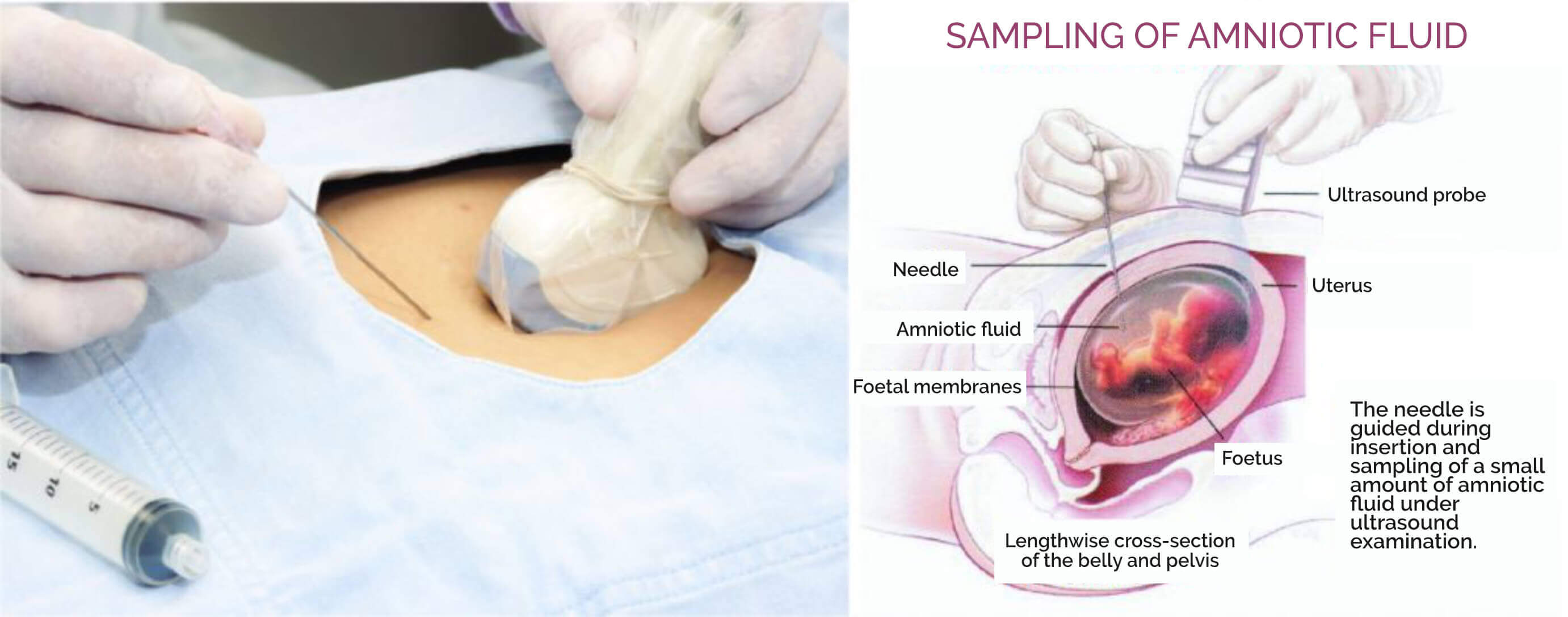 SAMPLING OF AMNIOTIC FLUID